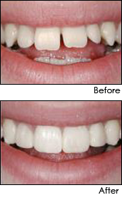 dental crowns and bridges florida