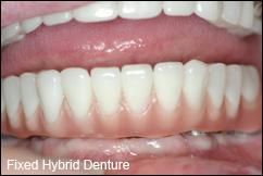 Fixed hybrid dentures