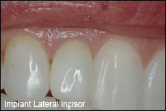 implant dentistry pompano beach